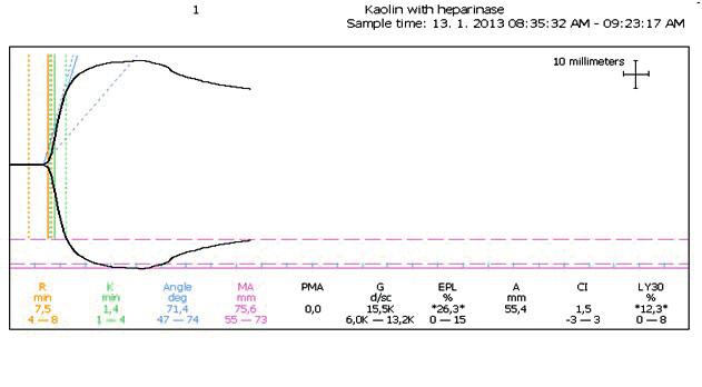 Obr. 2d TEG krivka s heparinázou vylúčila predĺženie R na obrázku 2c z nedostatku koagulačných faktorov Jav sme vysvetlili možnou prítomnosťou endogénnych heparinoidov.