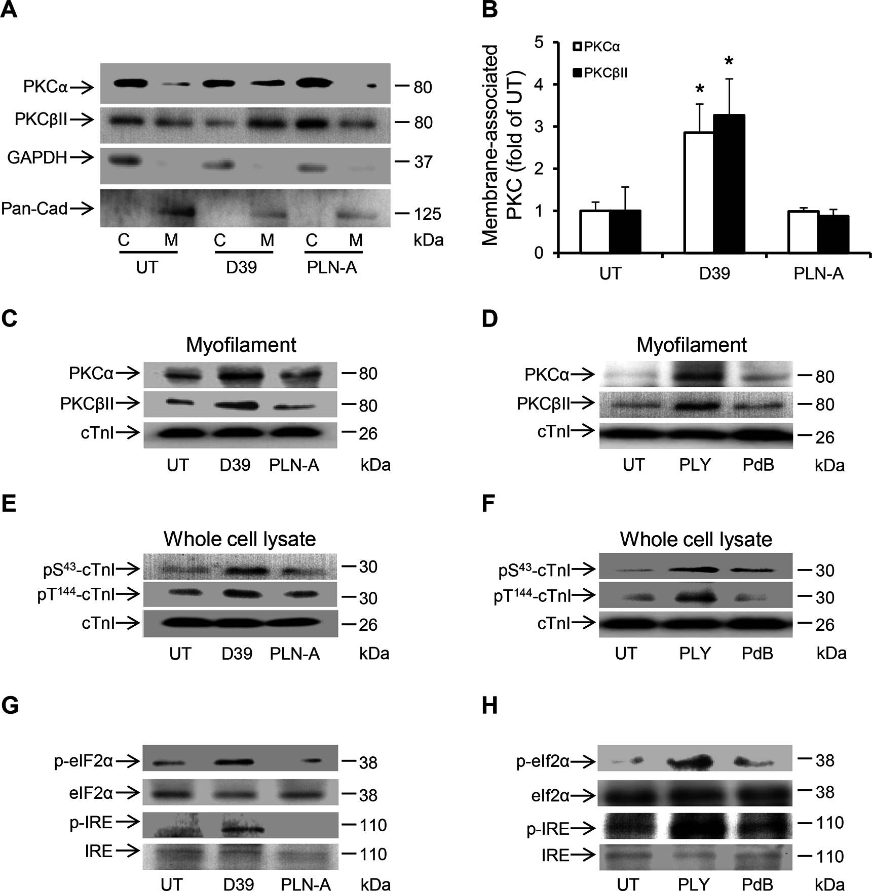 Activation of PKCα-cTnI pathway and ER stress in murine cardiomyocytes exposed to D39 or PLY.