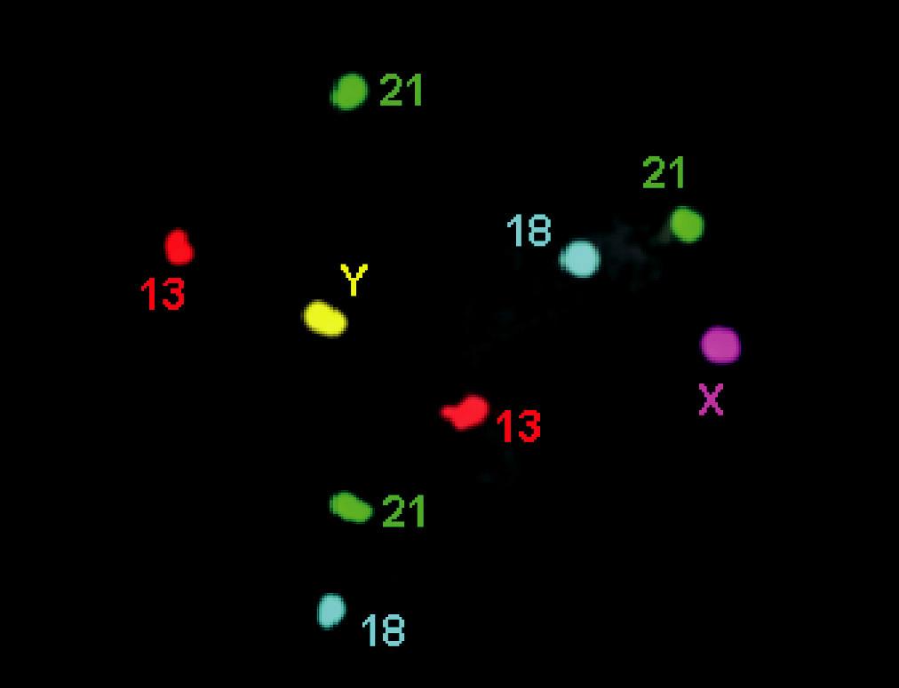 FISH chromozómů 13, 18 a 21 (3 × 21)