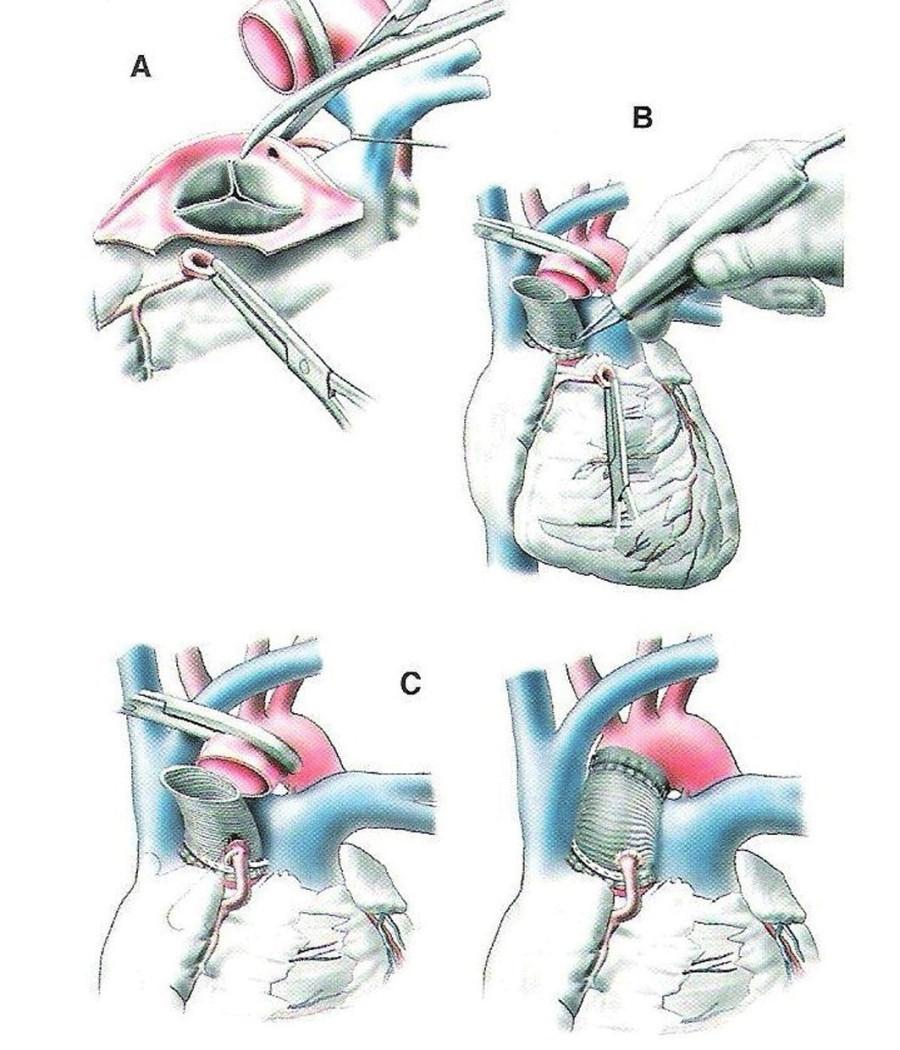 Náhrada vzestupné aorty a aortální chlopně conduitem (1)