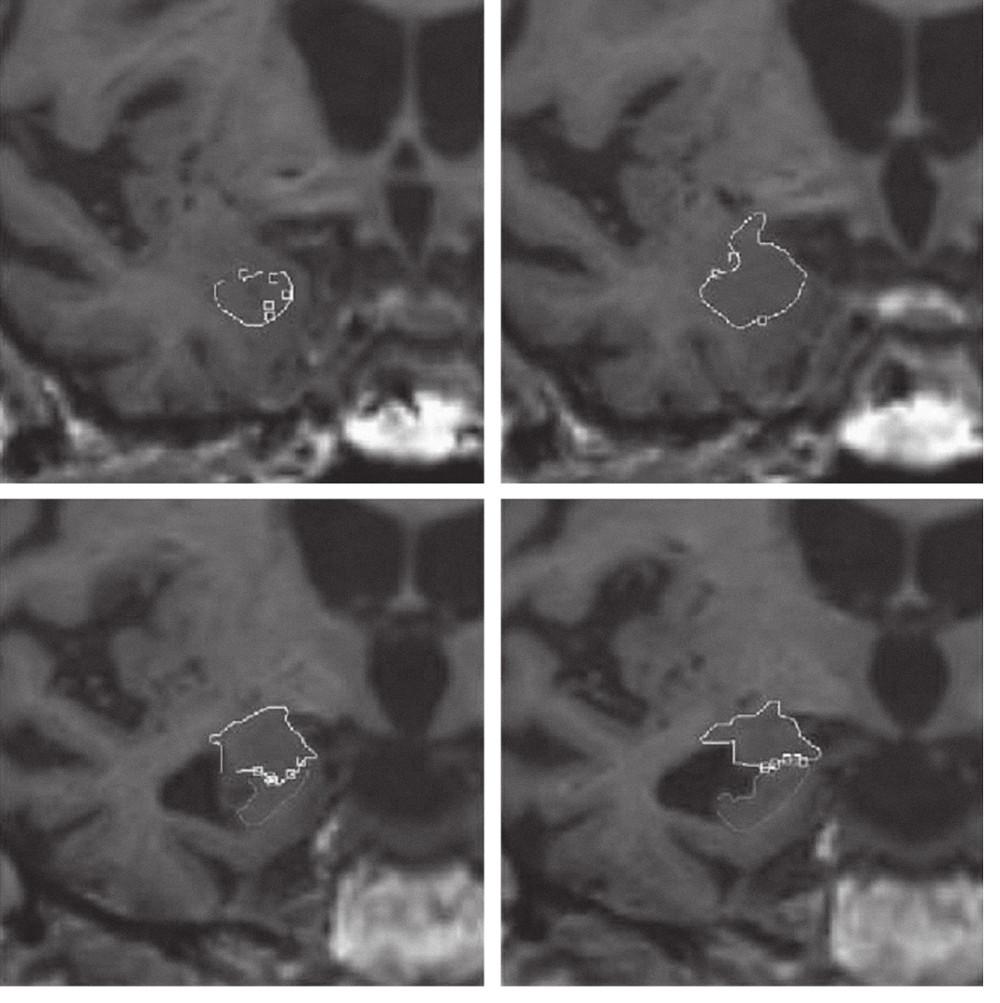 Manuální ohraničení amygdaly v koronárních řezech u pacienta s AN.