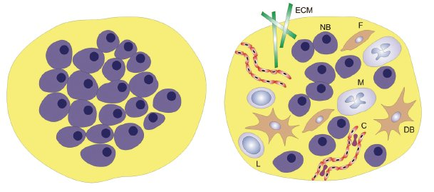 Redukcionistický a komplexní pohled na nádor. ECM – extracelulární matrix, F – fibroblast, M – makrofág, NB – nádorová buňka, DB – dendritická buňka, L – lymfocyt, C – céva.