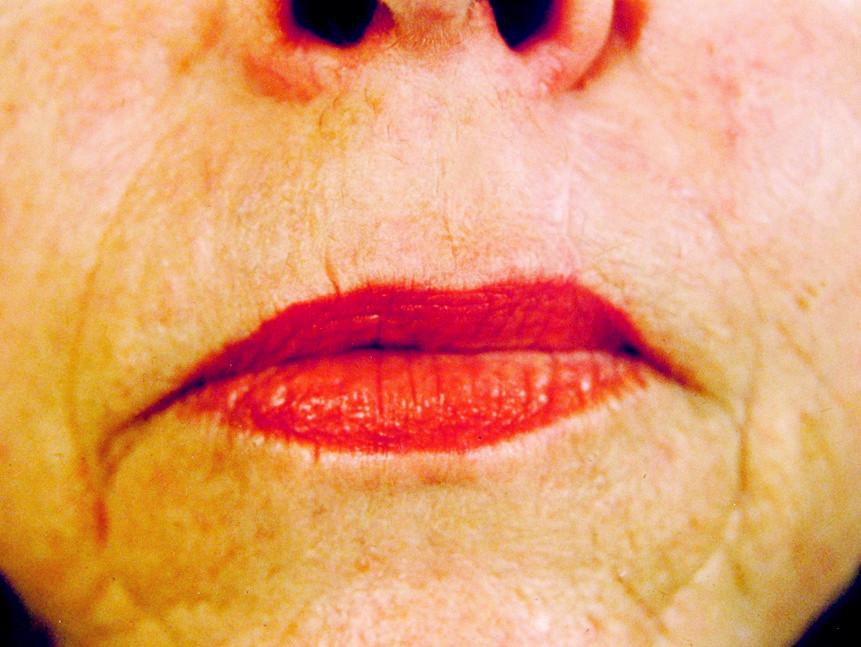 Stav po excizi basaliomu horního rtu se spontální epitelizací Pic. 4. Excision of the upper lip basalioma with spontaneous epitalization – the postoperative condition