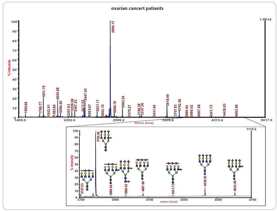 Glykanového profi lování vzorků sér pacientek s nádorem vaječníků.