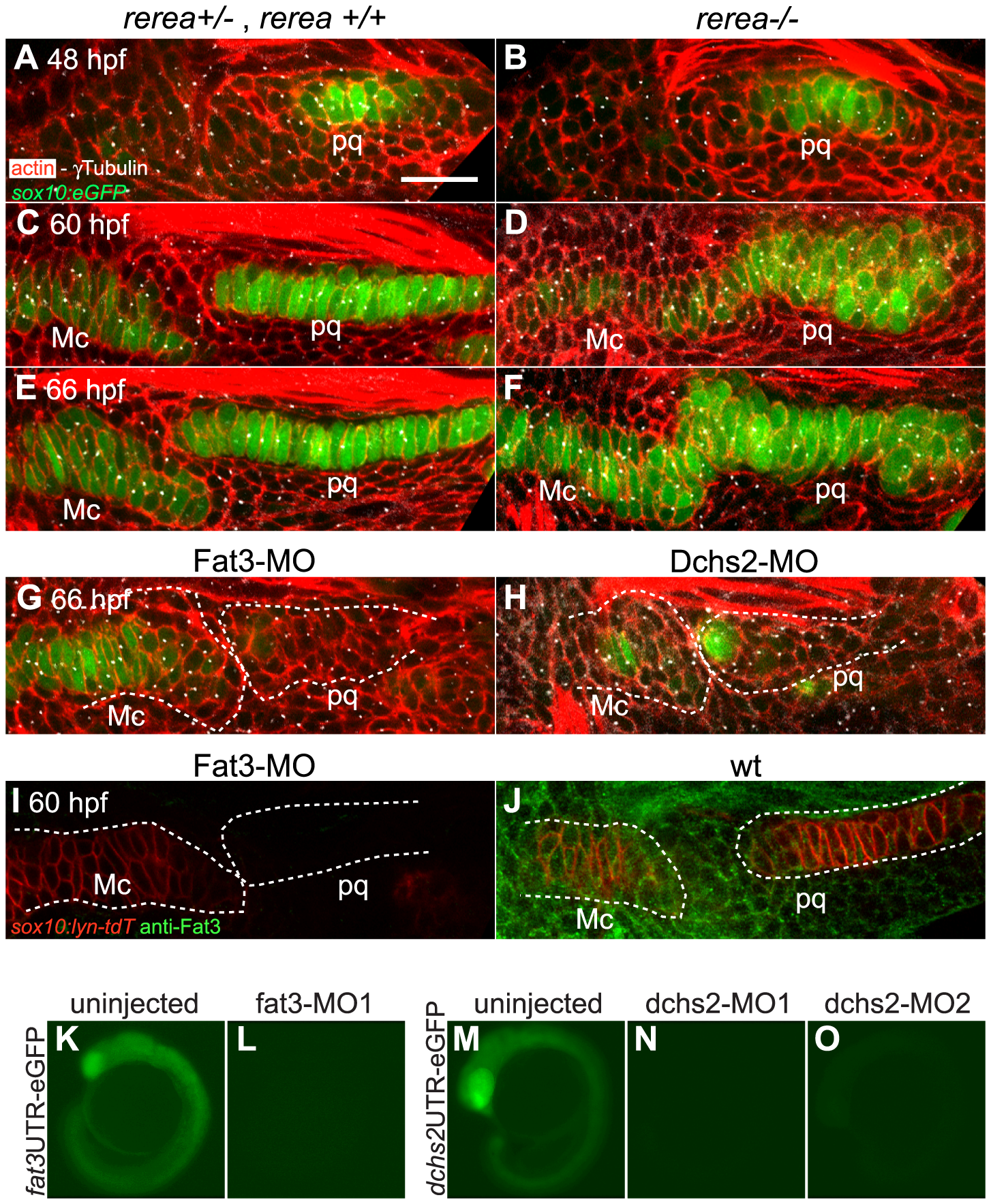 REREa, Fat3 and Dchs2 are required for cartilage stacking and polarity.