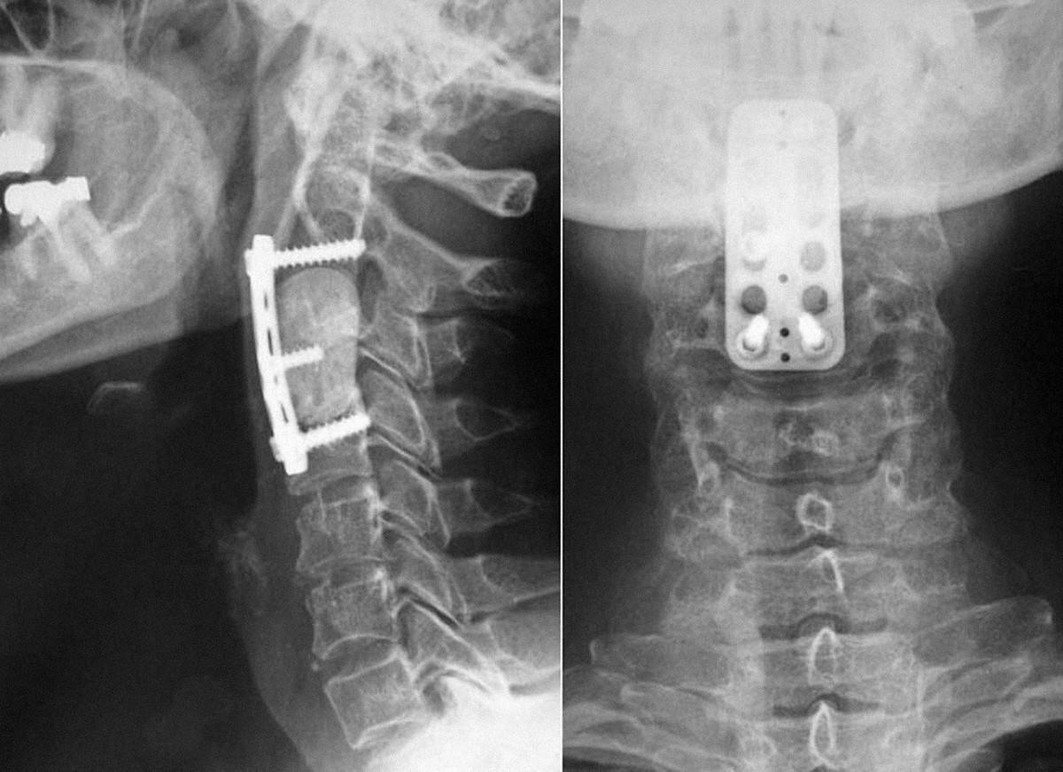Náhrada obratlového těla C3 po odstranění metastázy předoperačně neznámého histologického původu, která byla efinitivně pospána jako sekundární ložisko karcinoidu. Blok kostního cementu vyplňující defekt po resekci jistí dlaha s bikortikálními šrouby.