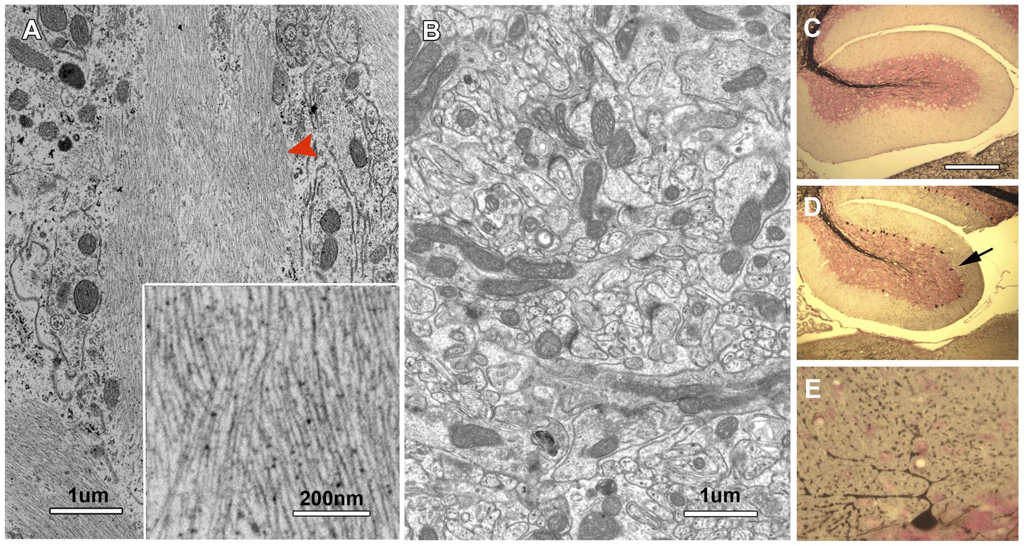 Neurofibrilary tangles in the cerebellum of <i>nur17</i> mice.