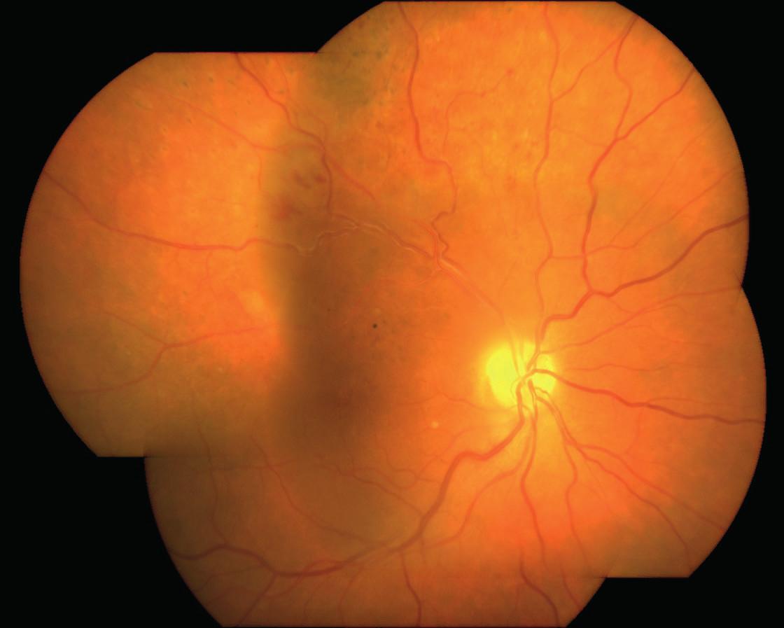 Zlepšení nálezu na sítnici OP rok po kombinované léčbě OZURDEXEM a ošetření sítnice laserem