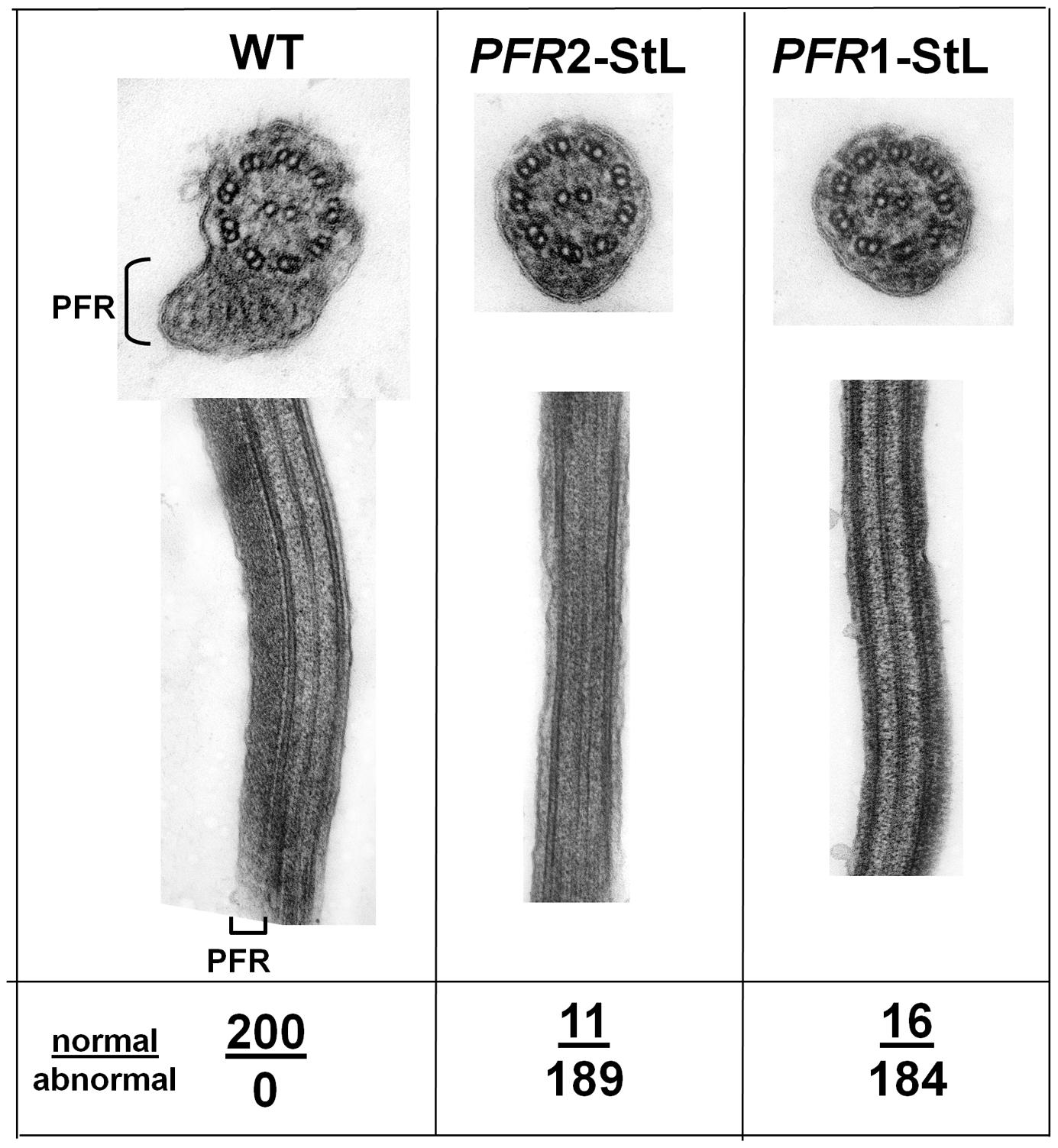 Ablation of paraflagellar rod synthesis following RNAi of <i>PFR1</i> or <i>PFR2</i>.