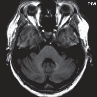 T1 vážený obraz, v oblasti nucleus dentatus bilaterálně je patrná zvýšená intenzita signálu.