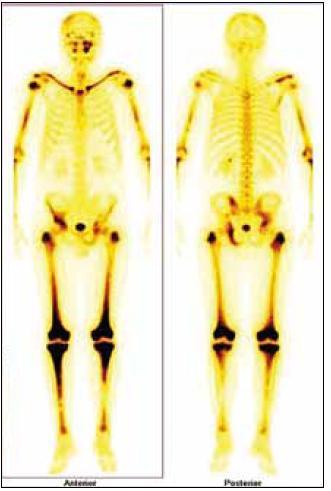 Typický scintigrafický obraz pro Erdheimovu-Chesterovu chorobu, zvýšení akumulace Tc pyrofosfátů v dlouhých končetinách. V jejich kostní dřeni je infiltrace z pěnitých histiocytů a cytokiny jimi produkované stimulují vychatávání Tc, proto tento typický obraz. RTG a CT zobrazení prokáže zesílení kortikalis v těchto oblastech a případně fibrózu v retroperitoneu.