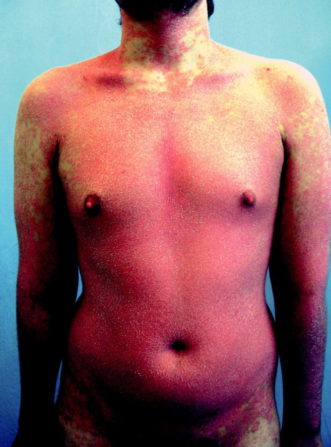 Stav 4 týdny po ukončení terapie infliximabem a před zahájením aplikace efalizumabu