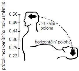 Znázornění závislosti průtoku CSF shuntem na poloze pacienta (upraveno), kdy ve vertikální poloze dochází k jeho zvýšení [78].