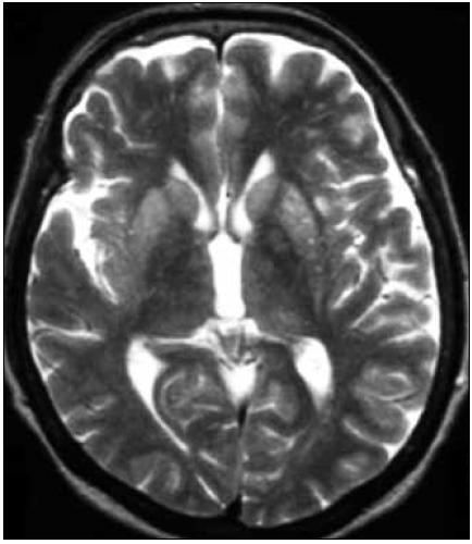 MR mozgu. Zvýšenie intenzity signálu v oblasti bazálnych ganglií, predovšetkým putamen (T2-vážený obraz). Pacientka s genetickou formou CJch s mutáciou prionového génu E200K v kodóne 200, polymorfizmus prionoveho génu v kodóne 129 je Met/Met.  Publikované so súhlasom Kliniky radiológie a zobrazovacích metód UN LP Košice.