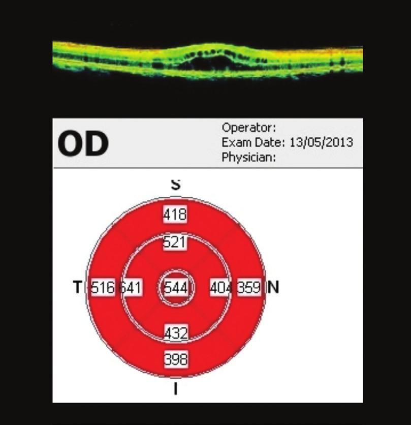 OCT makuly OP 3 týdny po aplikaci bevacizumabu Ve fovee OP 544 μm, minimální reakce na bevacizumab