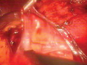 Otevření Gerotovy fascie při laparoskopické adrenalektomii.