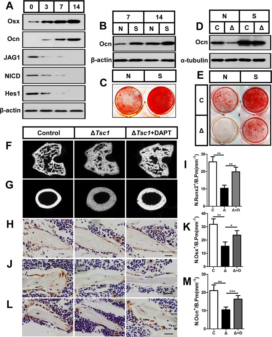 mTORC1 impairs osteoblast differentiation through the Notch pathway upstream of Runx2.