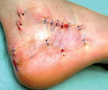 Uzavření operačních ran