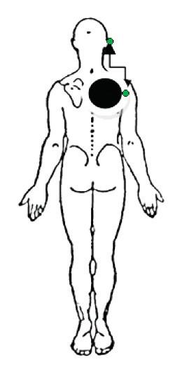 Lokalizácia bolesti u posterolaterálneho derangementu s vyžarovaním bolesti ku lakťu (McKenzie, May, 2006).