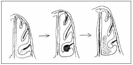 Schematický nákres turbinoplastiky dle Pirsiga/Huizinga.