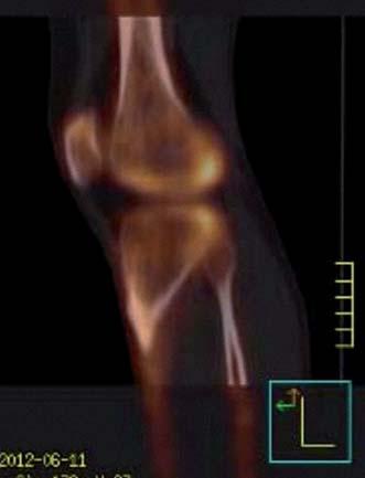 Dynamická scintigrafie (SPECT) pravého kolenního kloubu. Vyšší aktivita v kondylech femuru i tibie (červen roku 2012).