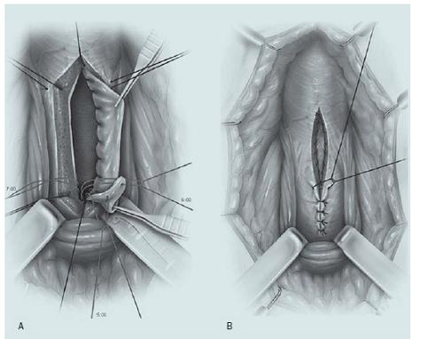 Uretroplastika technikou ventrálního onlay graftu. A – Podélné otevření bulbární části močové trubice podél ventrálního povrchu, přičemž je štěp ze sliznice dutiny ústní suturou fixován k původní uretrální ploténce. B – Spongiózní tkáň je uzavřena přes tento štěp.