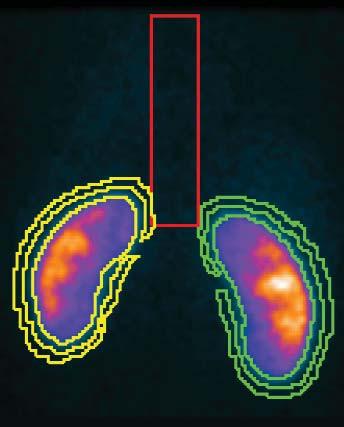 Obraz kontrolního statického scintigrafického vyšetření ledvin.