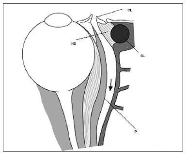 Transkarunkulárna mediálna orbitotómia. Disekcia medzi karunkulou a plica semilunaris so šetrením mediálneho palpebrálneho ligamenta a slzného vaku (šípka) CL- caruncula lacrimalis (rozdelená), SL- saccus lacrimalis, HS- Hornerov sval , P- periorbita (voľne podľa Lai et al., 2003)
