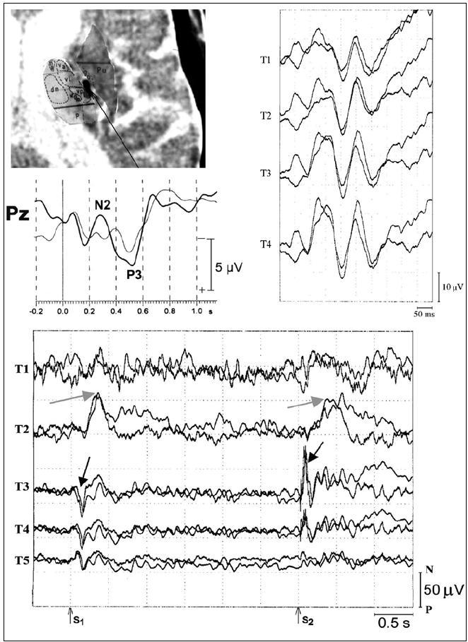 Vlna P3 komponenty středně- a dlouholatenčních evokovaných potenciálů. Horní část: Ukázka uložení intracerebrální elektrody T v pravém thalamu – superpozice intracerebrální elektrody na CT, ukázka intracerebrální registrace sluchové vlny P3 a dalších komponent v odd-ball paradigmatu snímané z pravého zadního thalamu (vpravo). Střední část: Ukázka vlny P3, skalpová registrace z elektrody Pz (zapůjčeno z archivu prof. MUDr. Milana Brázdila, Ph.D.). Dolní část: Ukázka středně a dlouholatenčních komponent vlny P3, registrováno v paradigmatu CNV. Výrazná změna amplitudy svědčící pro přítomnost generátorů (šedá a černá šipka); snímáno z intracerebrální elektrody T, čísla označují jednotlivé kontakty intracerebrální elektrody (T1–5). S1: varovný, warning, podnět; S2:vykonávající, imperativní podnět. Upraveno dle [3,4,48,52].