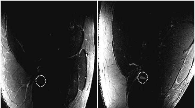 """Artefakt """"magického uhla"""". Priečny rez steh-nom. Vľavo je stehno orientované paralelne s magnetickým poľom, n. ischiadicus sa zobrazuje izointenzívne so svalom (kruh). Vľavo je stehno naklonené v uhle 55° a n. ischiadicus je zreteľne hyperintenzívny [5]."""