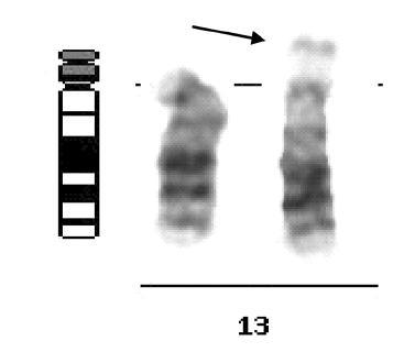 Délková varianta satelitů 13. chromozomu, 13ps+, jako zástupce skupiny variant akrocentrických chromozomů