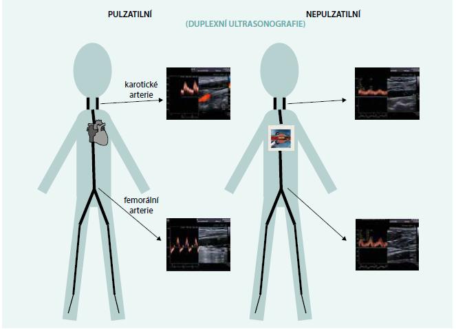 Charakteristika průtoků měřená ultrasonografickým dopplerovským vyšetřením u osoby bez mechanické srdeční podpory (vlevo) a se srdeční podporou (vpravo)