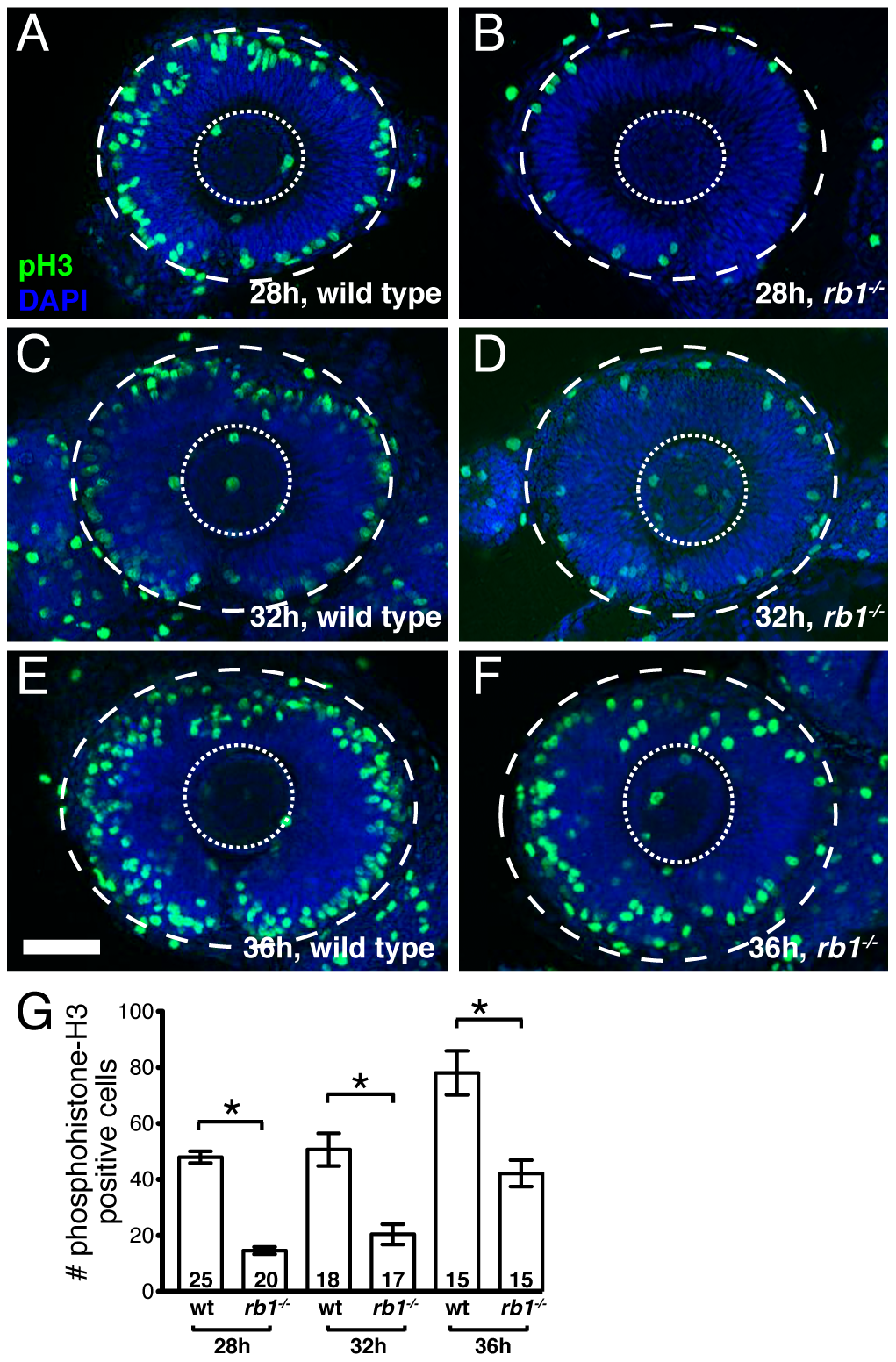 <i>rb1<sup>te226a</sup></i> retinas show delayed cell cycle exit during early retinogenesis.