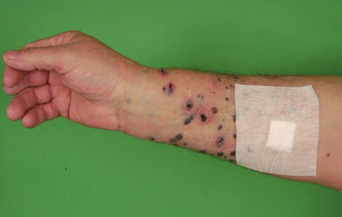 Kožní metastázy ALM v podobě četných tmavých nodulů.