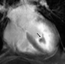 Difuzní subendokardiální pozdní sycení kontrastní látkou (LGE) apikální poloviny až dvou třetin levé komory s centrálním hyposignální oblastí odpovídající trombu (černá šipka) u nemocného s endomyokardiální fibrózou;