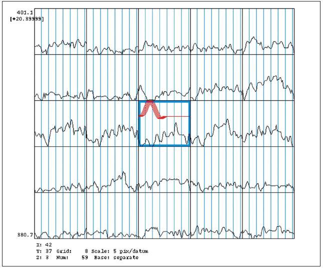 Funkční MR – hemodynamické vyšetření před operací – porucha CVR l. sin.