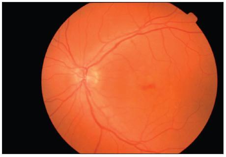 Barevný snímek fundu levého oka