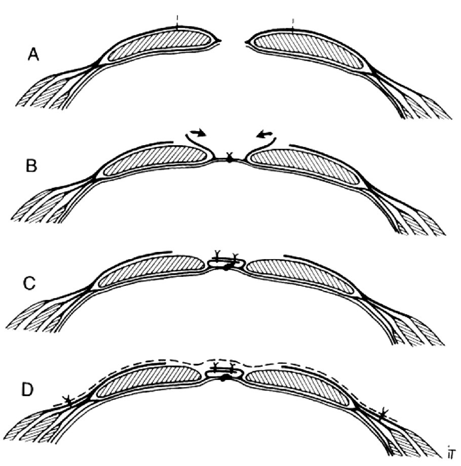 Narezanie prednej pošvy priamych brušných svalov, sutúra ich mediálnych okrajov a onlay uloženie sieťky (metóda sec. Chevrel)