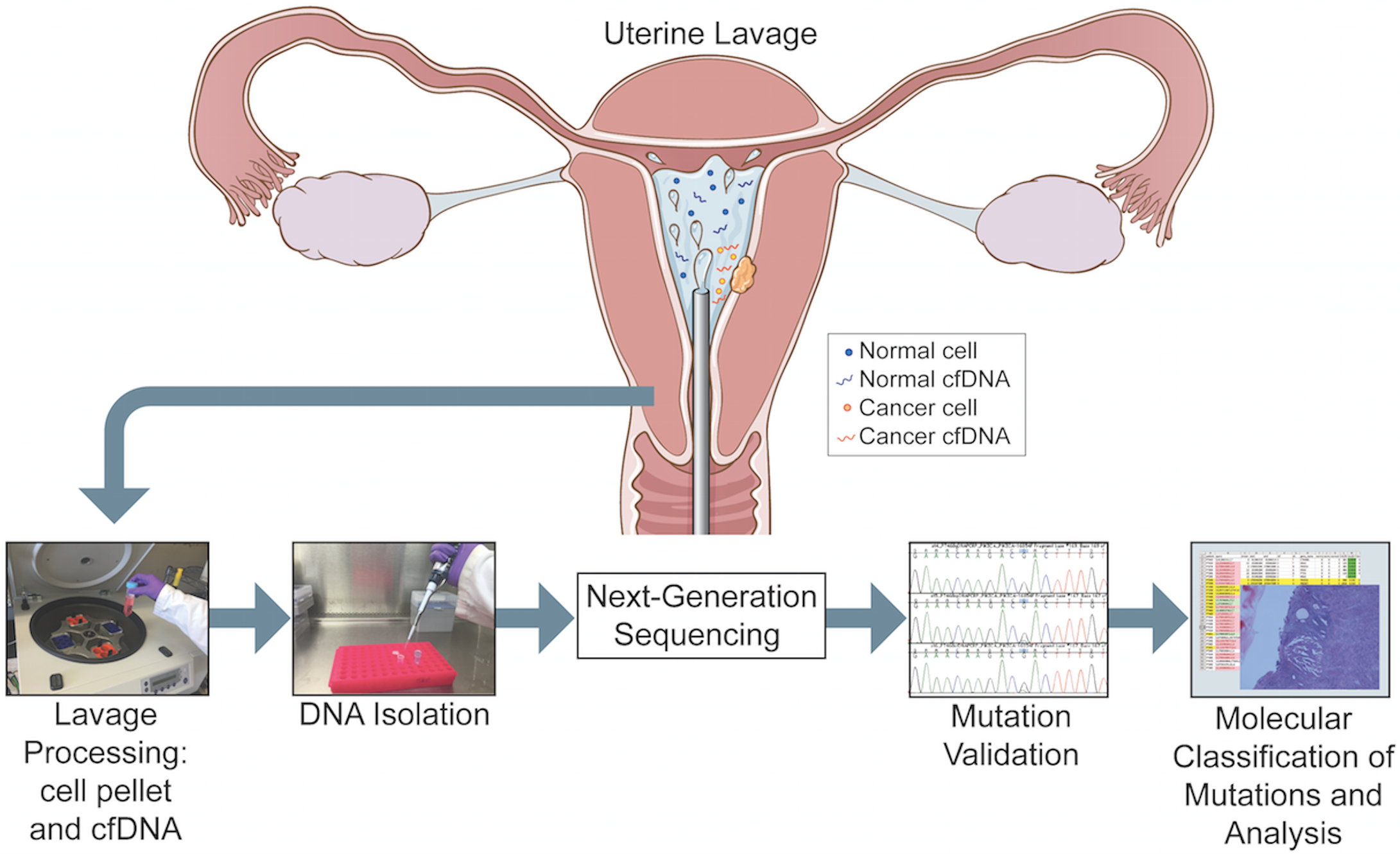 Overview of the study pipeline beginning with collection of uterine lavage fluid at the initiation of hysteroscopy.