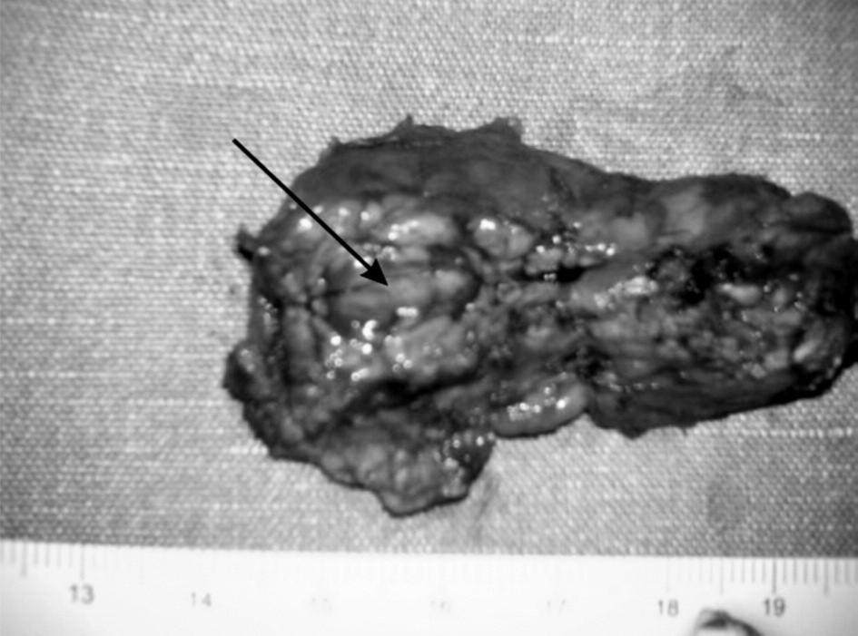 Resekovaná časť pankreasu. Fig. 3. Resected part of pancreas.