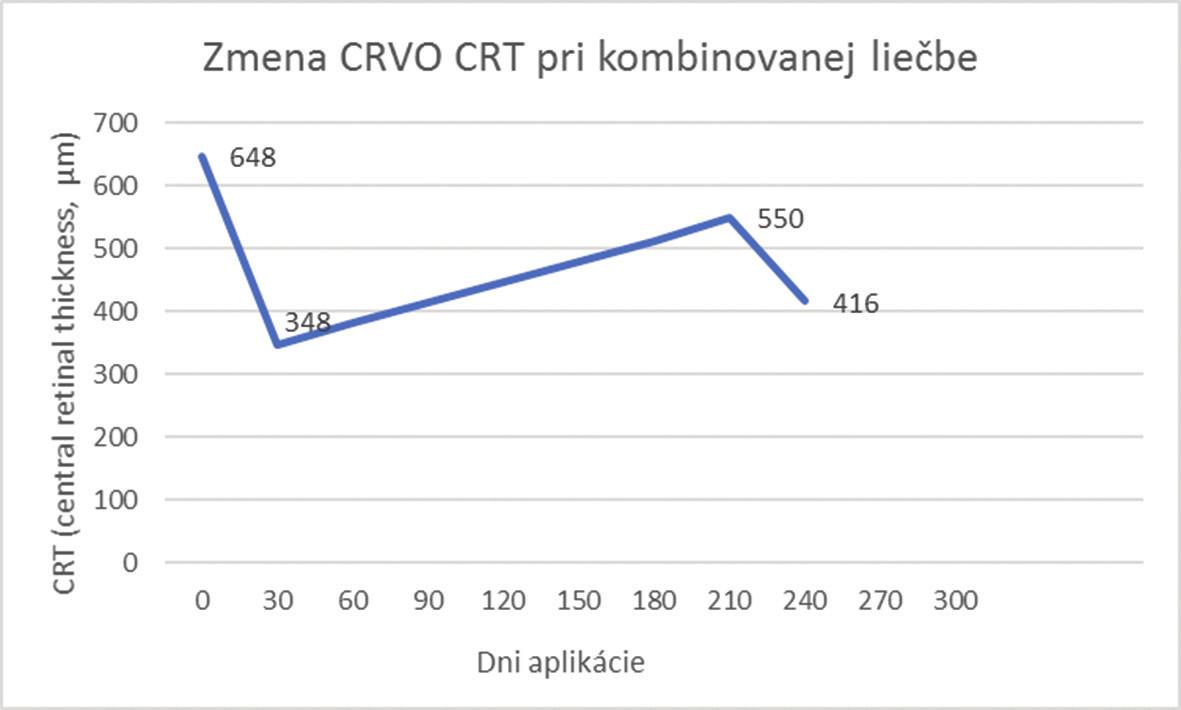 Zmena CRT pri kombinovanej liečbe pre CRVO