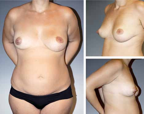 Fig. 8. A 19-year-old patient with bilateral tuberous breast deformity
