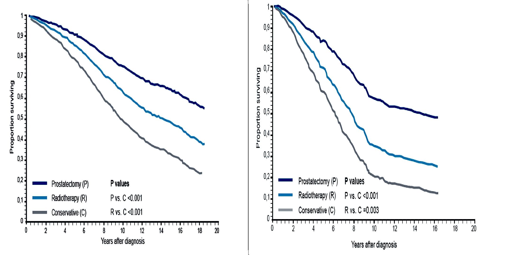 Obr. 6 A, B. Porovnání dlouhodobého přežívání všech nemocných s lokalizovaným CaP v závislosti na typu zvolené léčebné strategie  Porovnání přežívání všech nemocných (A) se zjištěným lokalizovaným karcinomem prostaty v závislosti na metodě primární léčby (radikální prostatektomie, radioterapie nebo konzervativní postup) při dlouhodobém sledování nemocných. Statisticky významně je lepší přežívání u nemocných po aktivní léčbě (radikální prostatektomie, radioterapie) a především po provedeném chirurgickém odstranění prostaty. Při hodnocení a porovnání výsledků u nemocných s hůře diferencovaným karcinomem prostaty (B) je dlouhodobý lepší výsledek radikální prostatektomie ještě výraznější. Upraveno podle (18).