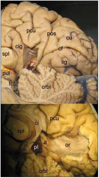 Laboratorní disekce mediálního aspektu hemisféry. Obr. 1a) Pohled na zadní mediální aspekt mozkové hemisféry s přístupem do atria komory prekuneálním gyrem. tc – tectum, crbl – cerebellum, lig – gyrus lingualis, cf – fissura calcarina, cu – cuneus, pos – sulcus parieto-occipitalis, pcu – precuneus, cig – gyrus cinguli, spl – splenium, pul – pulvinar thalami, šipka označuje pro přístup důležitou hranici: parieto-okcipitální sulkus Obr. 1b) Pohled do atria komory po subkortikální preparaci drah, optická radiace běží na laterální straně komory ve stratum saggitale. pl – plexus, a – atrium, ci – cingulum, or – radiatio optica