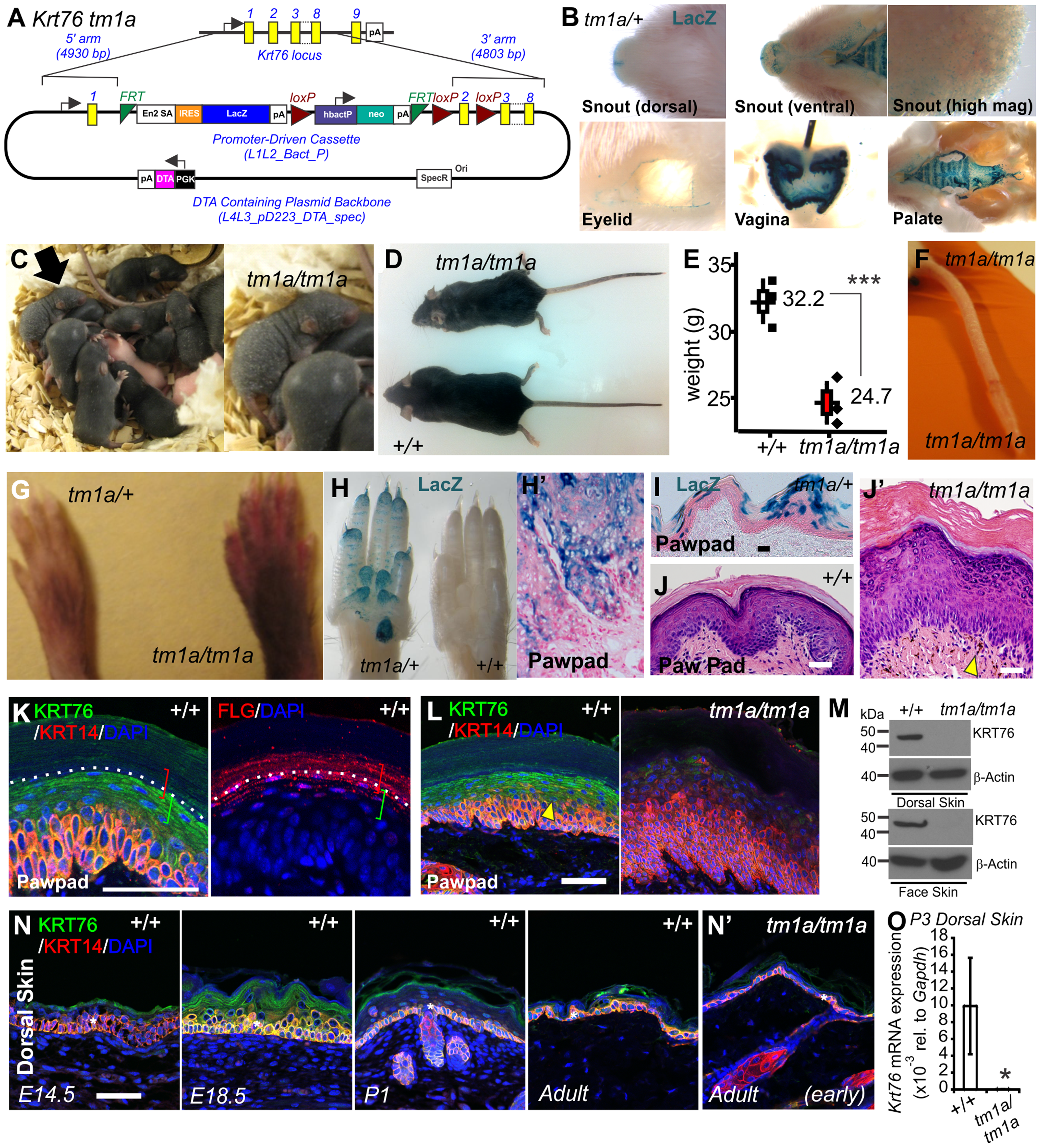 <i>Krt76</i> gene trap disruption causes gross epidermal defects.