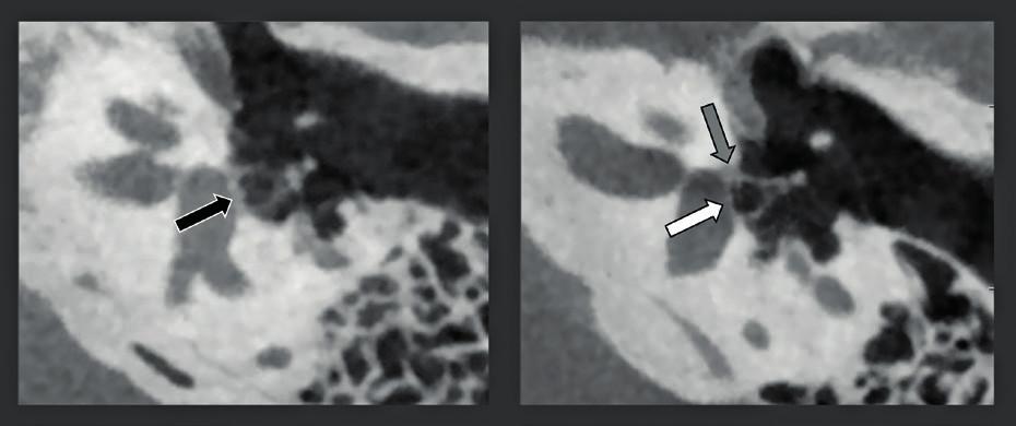 CBCT zdvojená šikmá rekonstrukce snímků středního ucha s vysokým rozlišením (rozlišení 150 μm) u dvou rozdílných pacientů s otosklerózou.