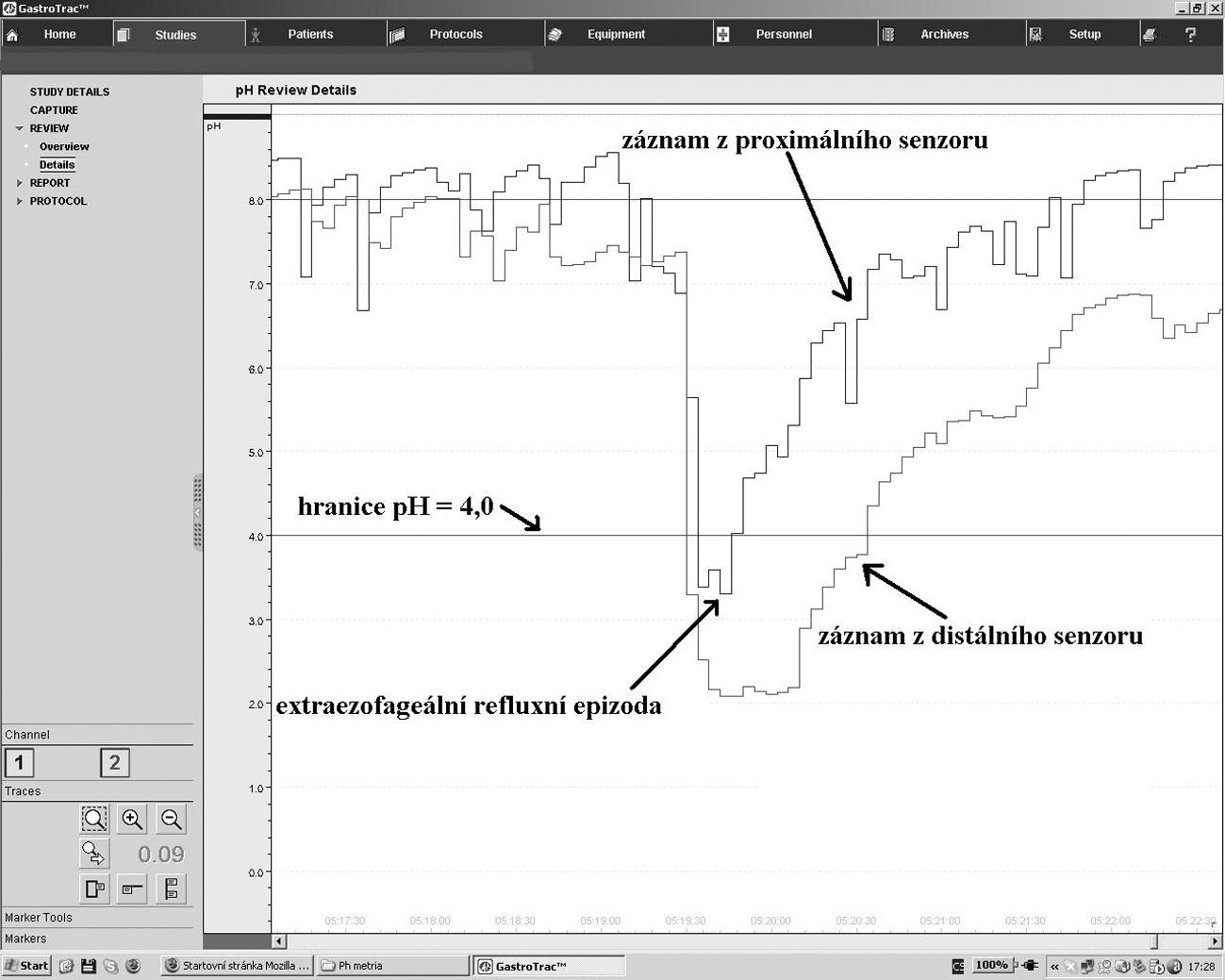 Záznam dvoukanálové pH–metrie. Proximální senzor je umístěn nad úroveň horního jícnového svěrače. Distální senzor je 15 cm pod ním. Na obrázku je zachycena část záznamu zobrazující extraezofageální refluxní epizodu splňující kritéria, které stanovil Postma (pokles pH ≤ 4,0, pokles v proximálním senzoru následuje ihned po poklesu v distálním senzoru, pokles pH je rychlý a ostrý a pacient nejí ani nepije).