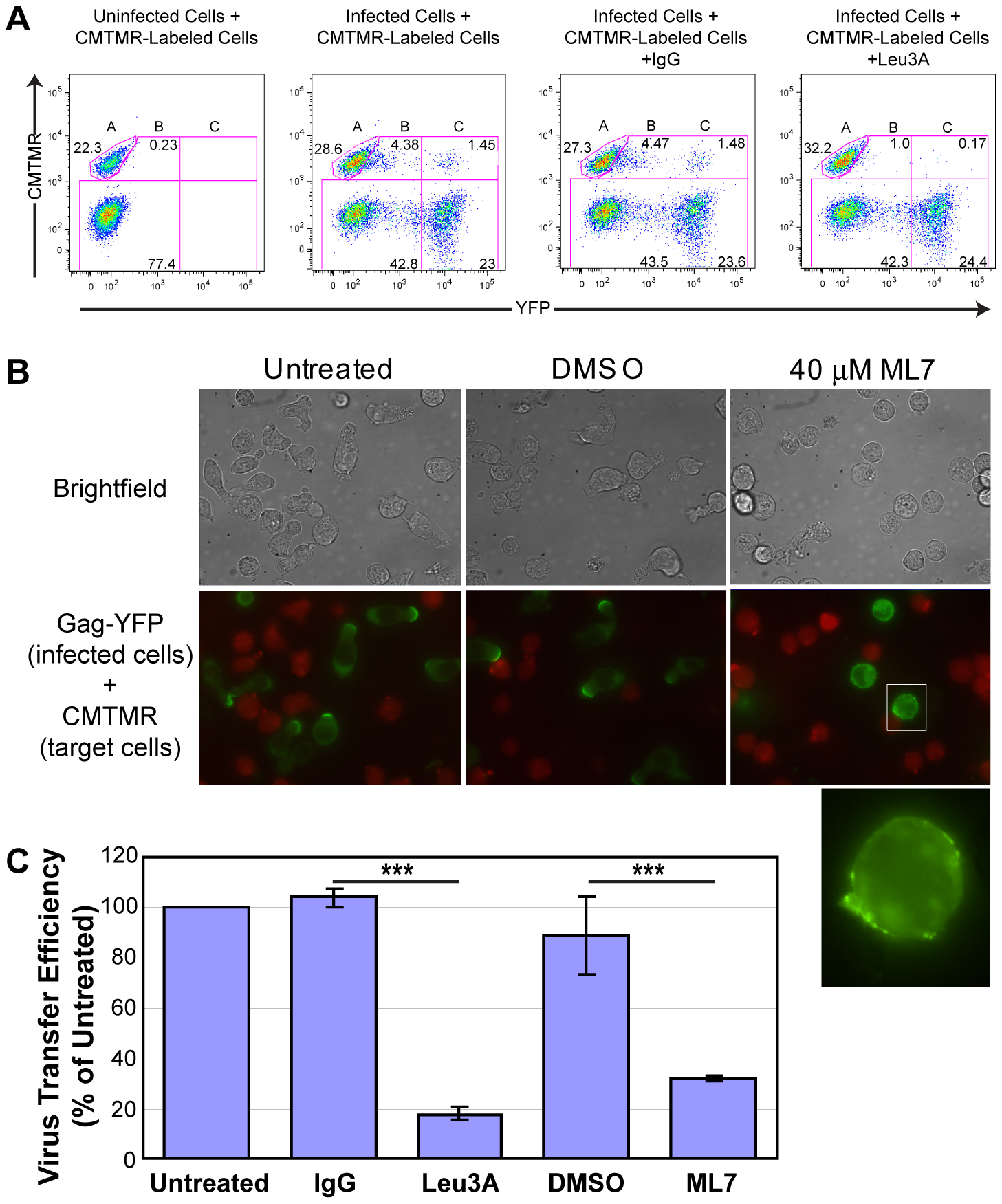 ML7 depolarizes cell morphology and Gag localization and reduces cell-to-cell transfer of Gag-YFP.