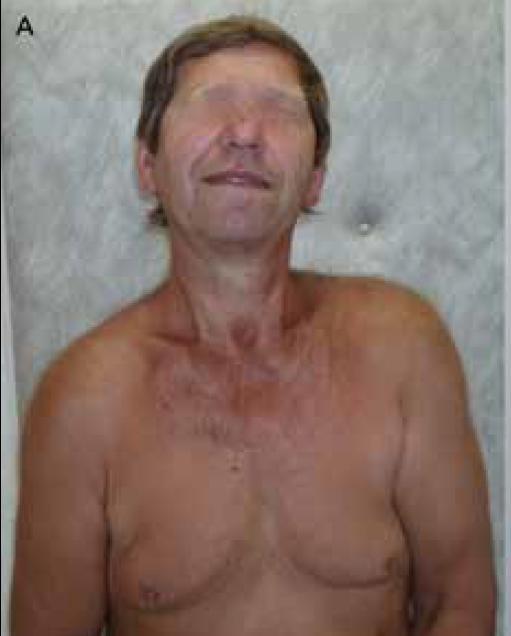 Obr. 3a) Osmapadesátiletý muž s cervikální dystonií s výraznou elevací levého ramene a lopatky.