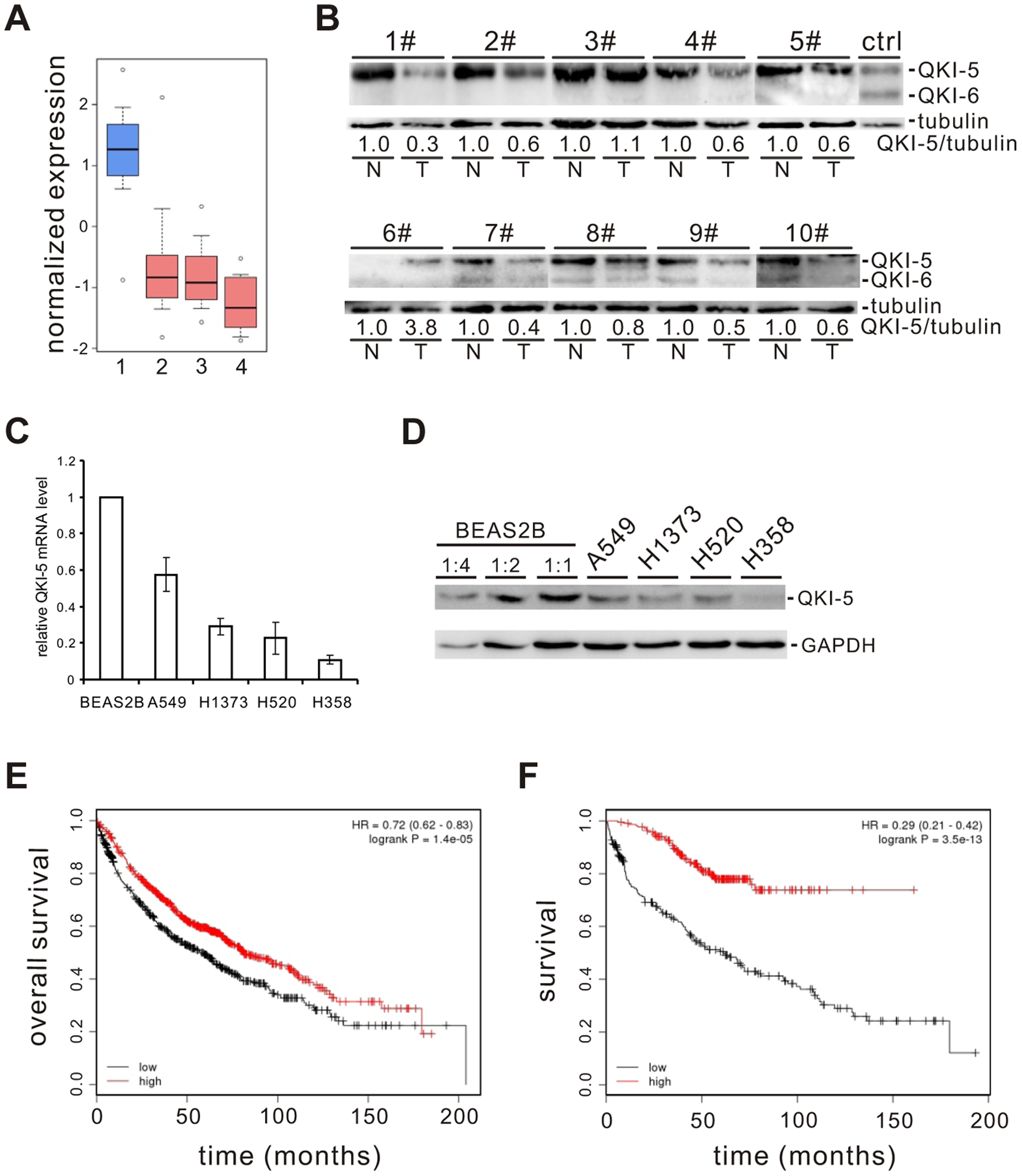QKI is frequently down-regulated in lung cancer and associated with poorer cancer prognosis.